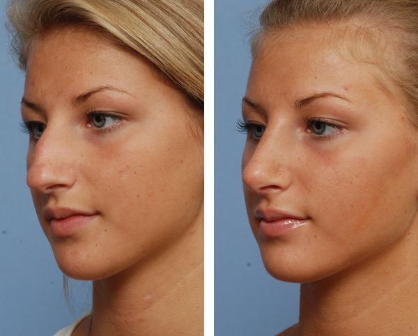 You Will Never Have To Be Embarrassed About Your Nose Now